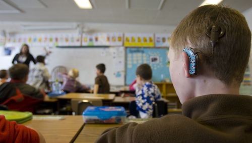 A child with cochlear implants sits apart from the rest of his classmates